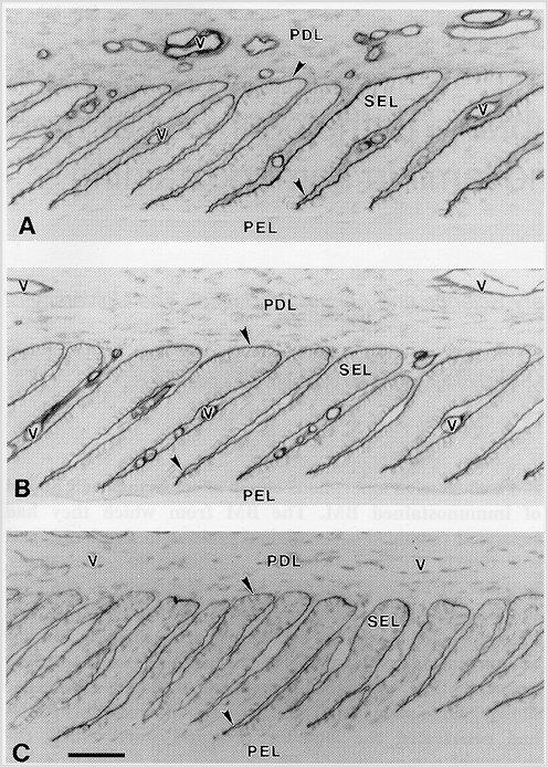 laminitis_basement_membrane_pathology_1