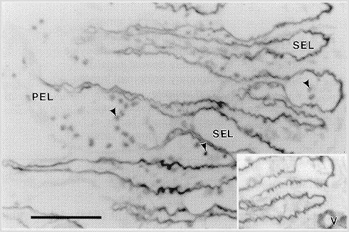 laminitis_basement_membrane_pathology_3