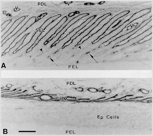 laminitis_basement_membrane_pathology_4