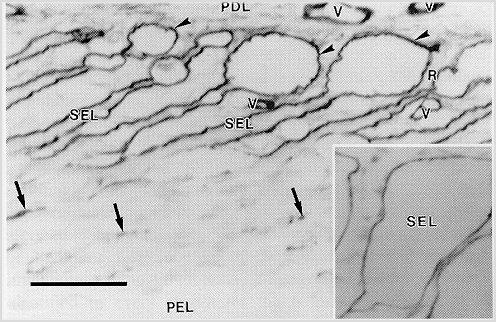 laminitis_basement_membrane_pathology_5