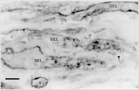 laminitis_basement_membrane_pathology_6